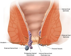 homeopathy medicine for piles | piles symptoms,treatment