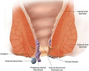 बवासीर की होम्योपैथिक दवा