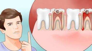 दांत दर्द की होम्योपैथिक दवा
